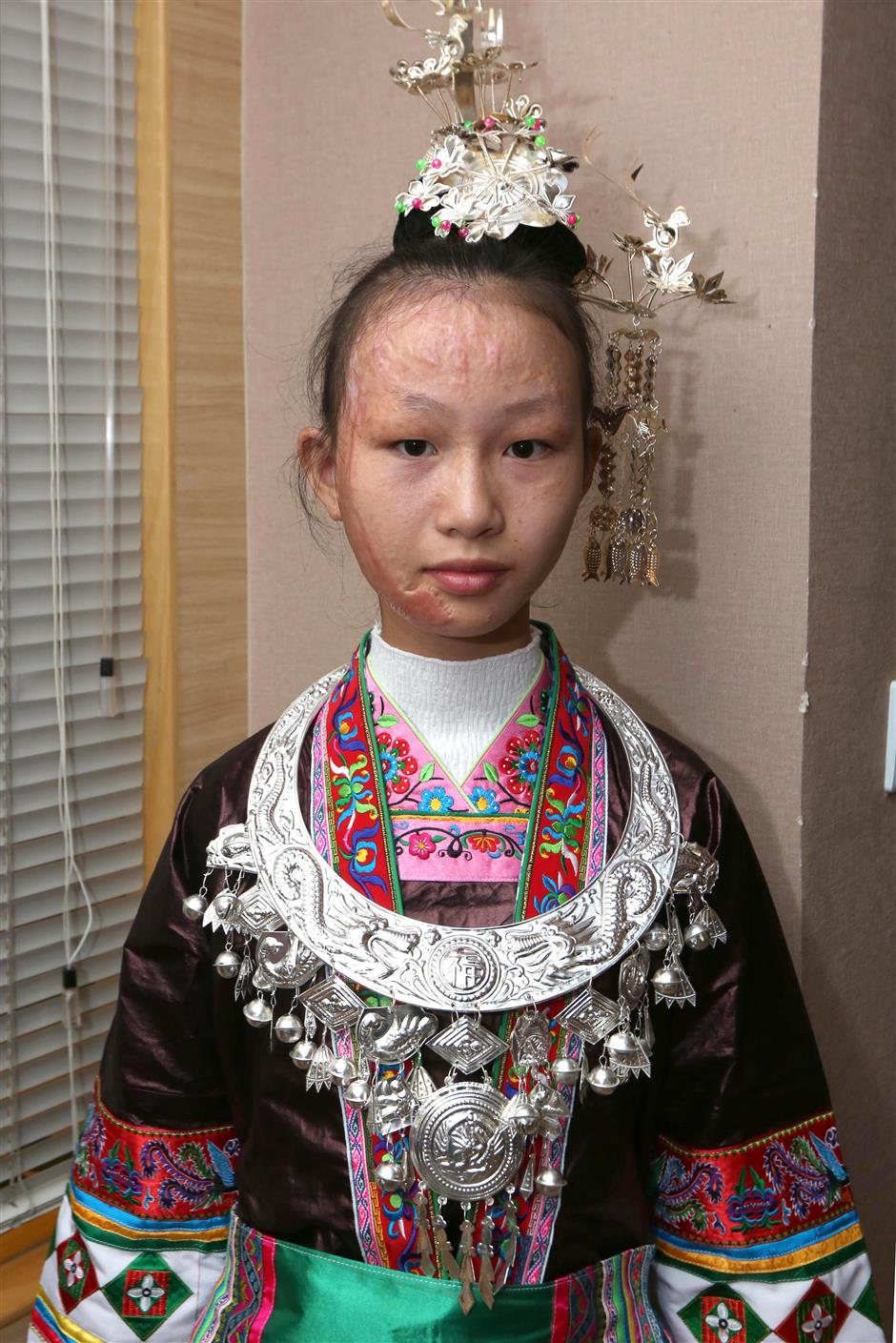 Young girl begins free treatment for facial burns