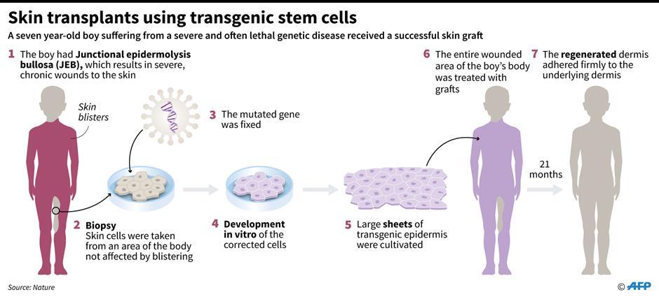 Miracle gene saves boy with skin eating disease