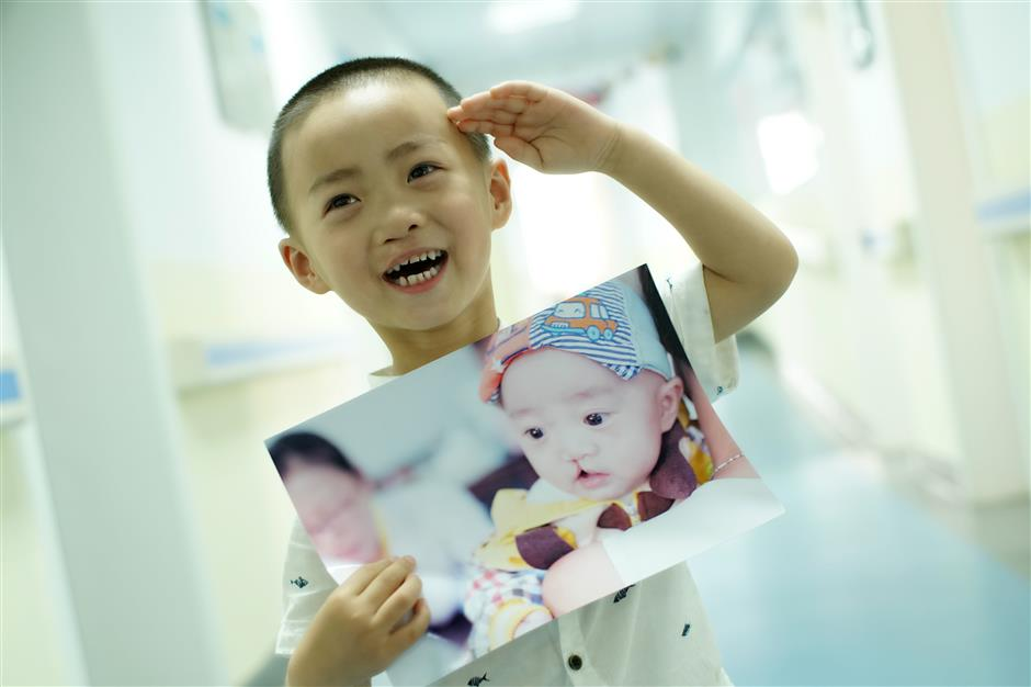 Sephora's Operation Smile completes 1,000 surgeries