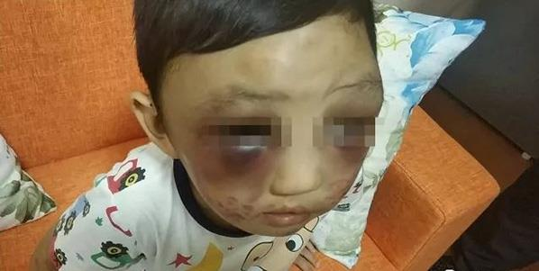 Single mother detained for abusing son
