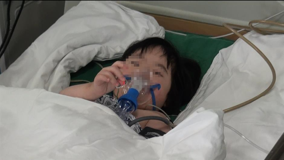 Charity surgeries for children with Downs syndrome
